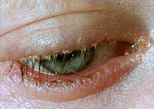 Blepharitis