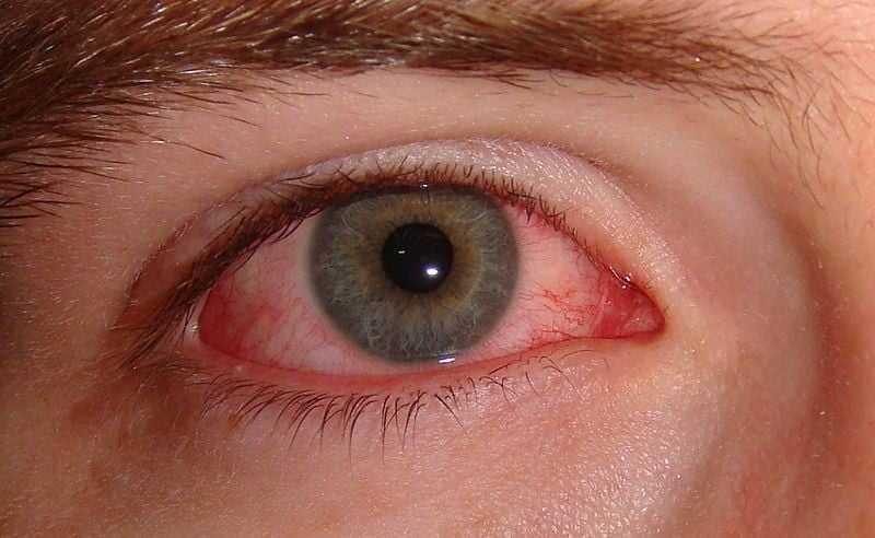 xirofthalmia